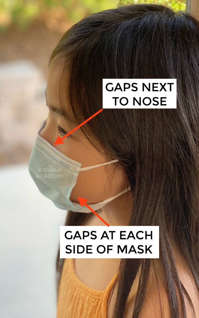 Example of a poor-fitting surgical mask